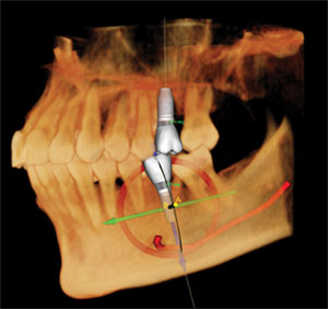 3D Dental image CT Scan